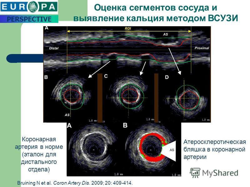 Оценка сегментов сосуда и выявление кальция методом ВСУЗИ Коронарная артерия в норме (эталон для дистального отдела) Атеросклеротическая бляшка в коронарной артерии PERSPECTIVE Bruining N et al. Coron Artery Dis. 2009; 20: 409-414.
