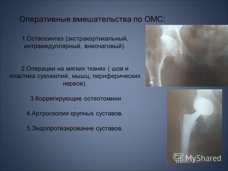 Оперативные вмешательства по ОМС: 1. Остеосинтез (экстра кортикальный, интрамедуллярный, внеочаговый). 2. Операции на мягких тканях ( шов и пластика сухожилий, мышц, периферических нервов). 3. Коррегирующие остеотомии. 4. Артроскопия крупных суставов