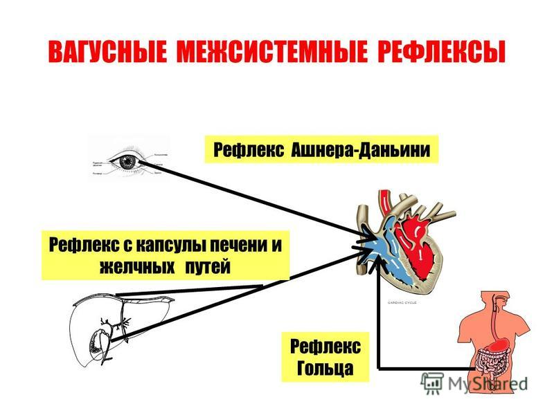 ВАГУСНЫЕ МЕЖСИСТЕМНЫЕ РЕФЛЕКСЫ Рефлекс Ашнера-Даньини Рефлекс с капсулы печени и желчных путей Рефлекс Гольца