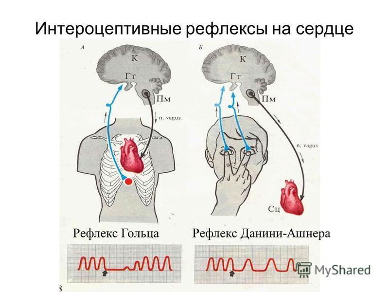 Интероцептивные рефлексы на сердце Рефлекс Гольца Рефлекс Данини-Ашнера