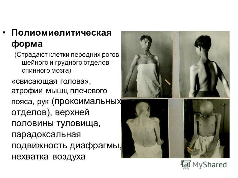 Полиомиелитическая форма (Страдают клетки передних рогов шейного и грудного отделов спинного мозга) «свисающая голова», атрофии мышц плечевого пояса, рук (проксимальных отделов), верхней половины туловища, парадоксальная подвижность диафрагмы, нехват