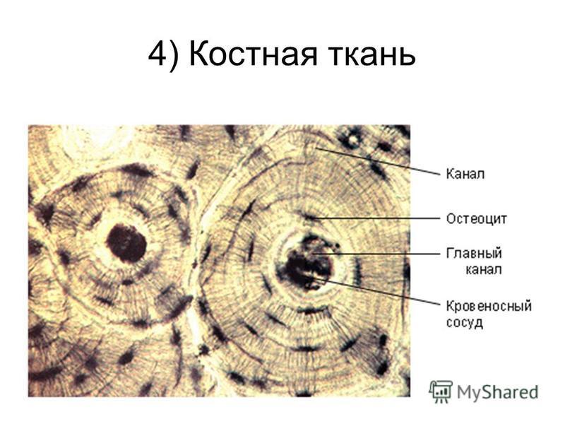 4) Костная ткань