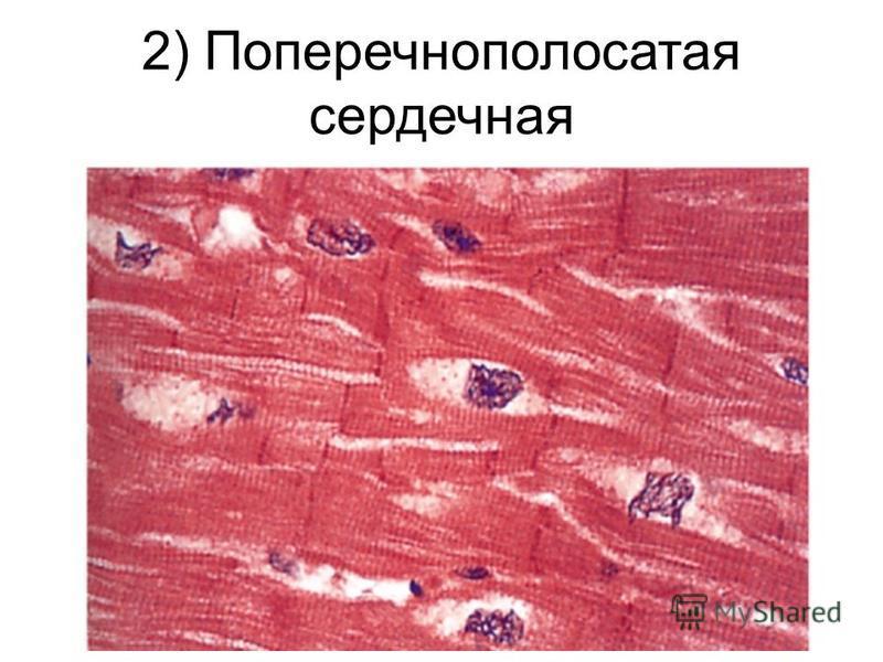2) Поперечнополосатая сердечная