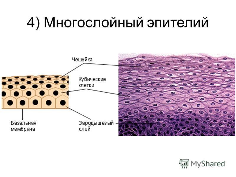 4) Многослойный эпителий