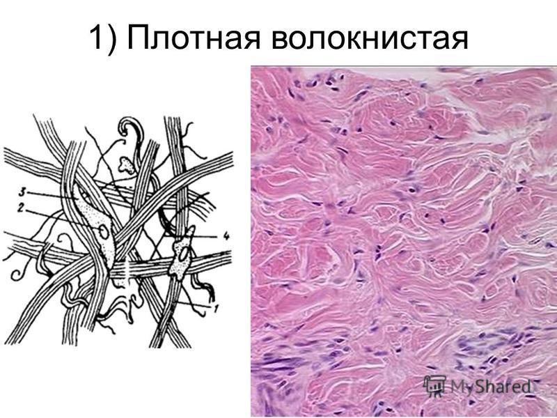 1) Плотная волокнистая