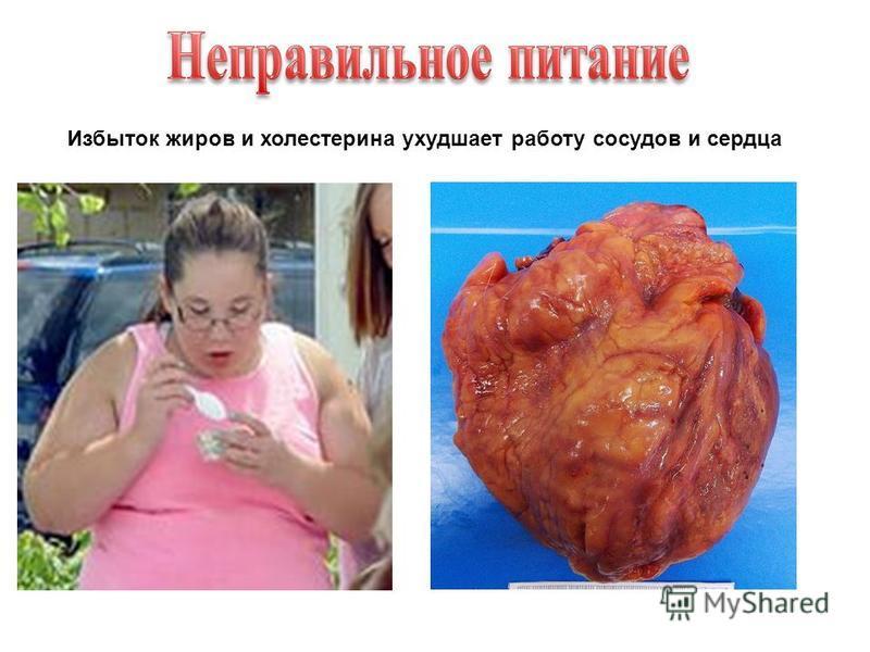 Избыток жиров и холестерина ухудшает работу сосудов и сердца