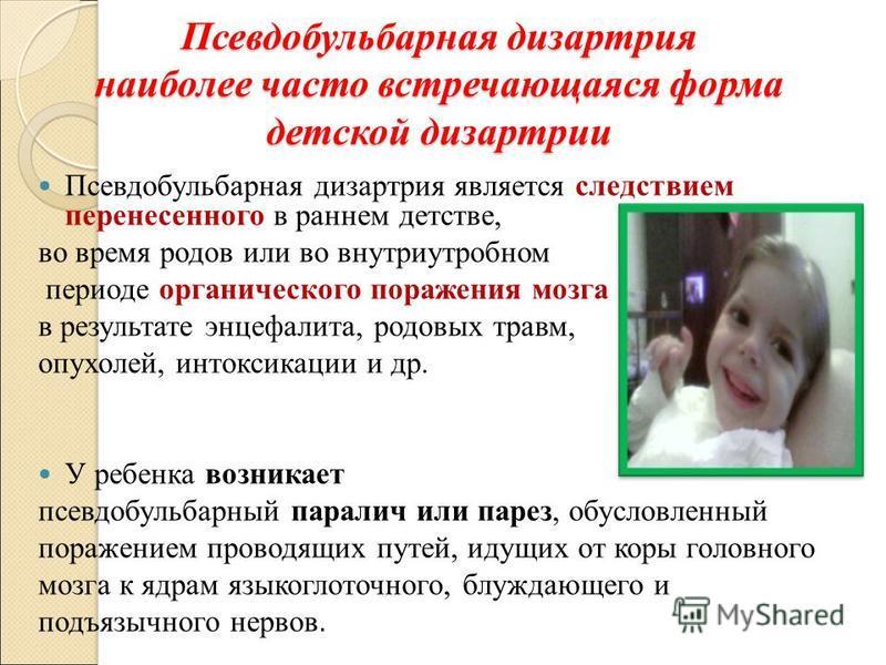 Псевдобульбарная дизартрия наиболее часто встречающаяся форма детской дизартрии Псевдобульбарная дизартрия является следствием перенесенного в раннем детстве, во время родов или во внутриутробном периоде органического поражения мозга в результате энц