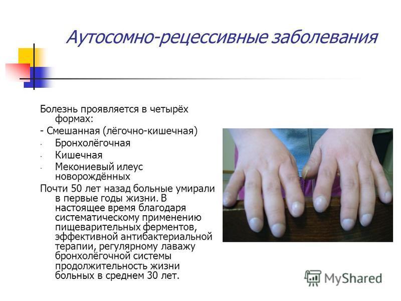 Аутосомно-рецессивные заболевания Болезнь проявляется в четырёх формах: - Смешанная (лёгочно-кишечная) - Бронхолёгочная - Кишечная - Мекониевый илеус новорождённых Почти 50 лет назад больные умирали в первые годы жизни. В настоящее время благодаря си