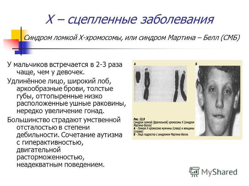 Х – сцепленные заболевания Синдром ломкой Х-хромосомы, или синдром Мартина – Белл (СМБ) У мальчиков встречается в 2-3 раза чаще, чем у девочек. Удлинённое лицо, широкий лоб, аркообразные брови, толстые губы, оттопыренные низко расположенные ушные рак