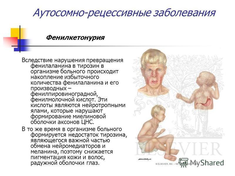 Аутосомно-рецессивные заболевания Фенилкетонурия Вследствие нарушения превращения фенилаланина в тирозин в организме больного происходит накопление избыточного количества фенилаланина и его производных – фенилпировиноградной, фенилмолочной кислот. Эт