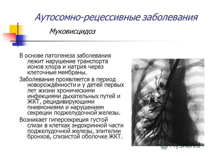 Аутосомно-рецессивные заболевания Муковисцидоз В основе патогенеза заболевания лежит нарушение транспорта ионов хлора и натрия через клеточные мембраны. Заболевание проявляется в период новорождённости и у детей первых лет жизни хроническими инфекция