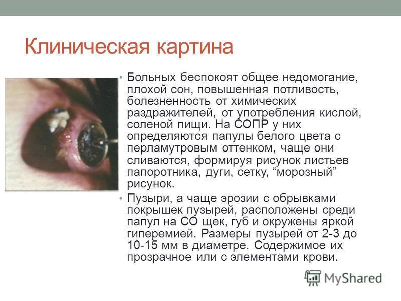 Клиническая картина Больных беспокоят общее недомогание, плохой сон, повышенная потливость, болезненность от химических раздражителей, от употребления кислой, соленой пищи. На СОПР у них определяются папулы белого цвета с перламутровым оттенком, чаще