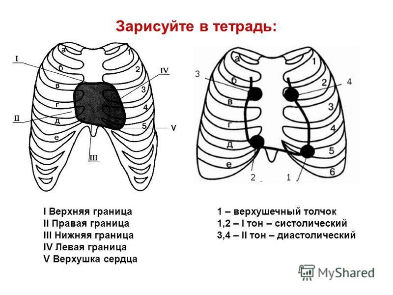 Зарисуйте в тетрадь: I Верхняя граница II Правая граница III Нижняя граница IV Левая граница V Верхушка сердца V 1 – верхушечный толчок 1,2 – I тон – систолический 3,4 – II тон – диастолический