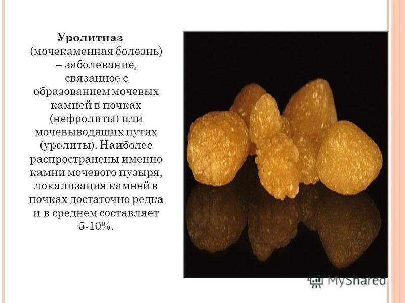 Цистиновые камни в почках причины