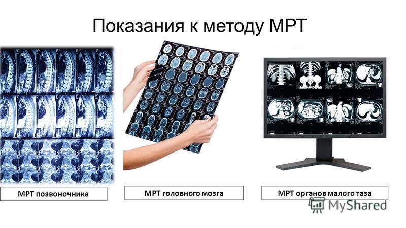 Показания к методу МРТ МРТ позвоночника МРТ головного мозга МРТ органов малого таза