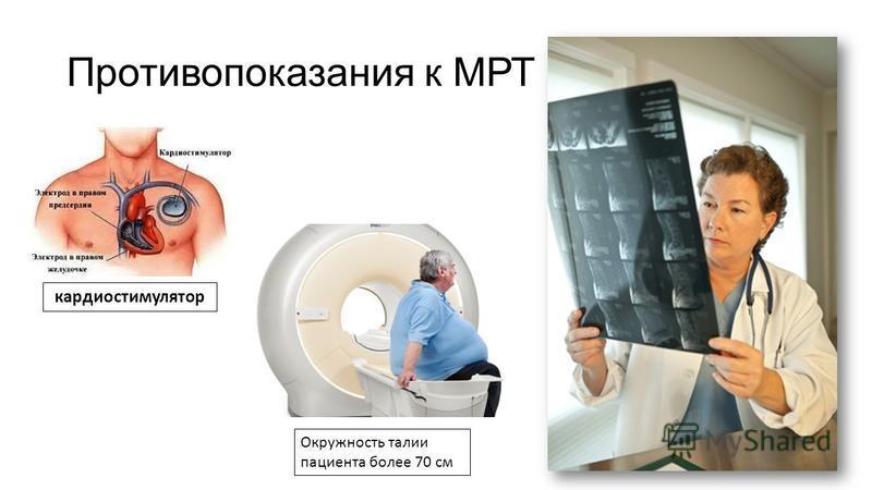 Противопоказания к МРТ кардиостимулятор Окружность талии пациента более 70 см