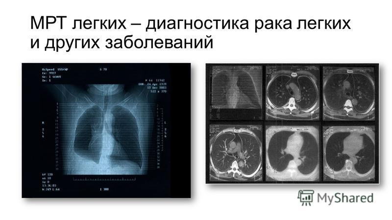МРТ легких – диагностика рака легких и других заболеваний