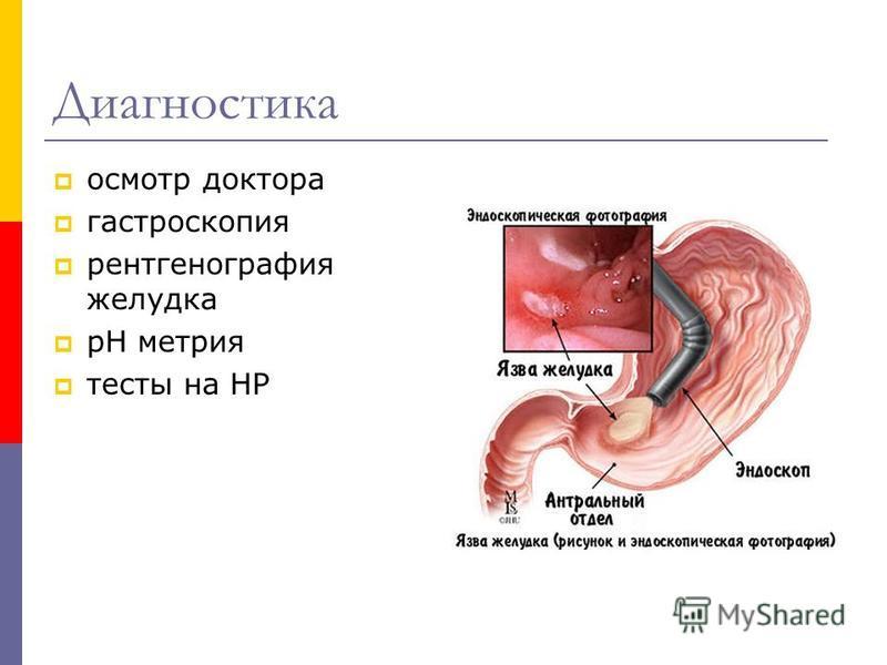 Диагностика осмотр доктора гастроскопия рентгенография желудка рН метрия тесты на НР