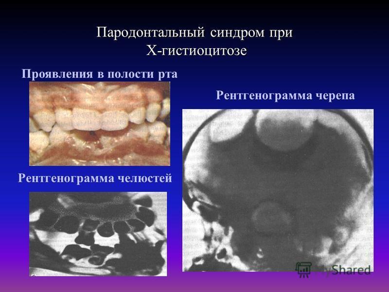 Пародонтальный синдром при Х-гистиоцитозе Проявления в полости рта Рентгенограмма челюстей Рентгенограмма черепа