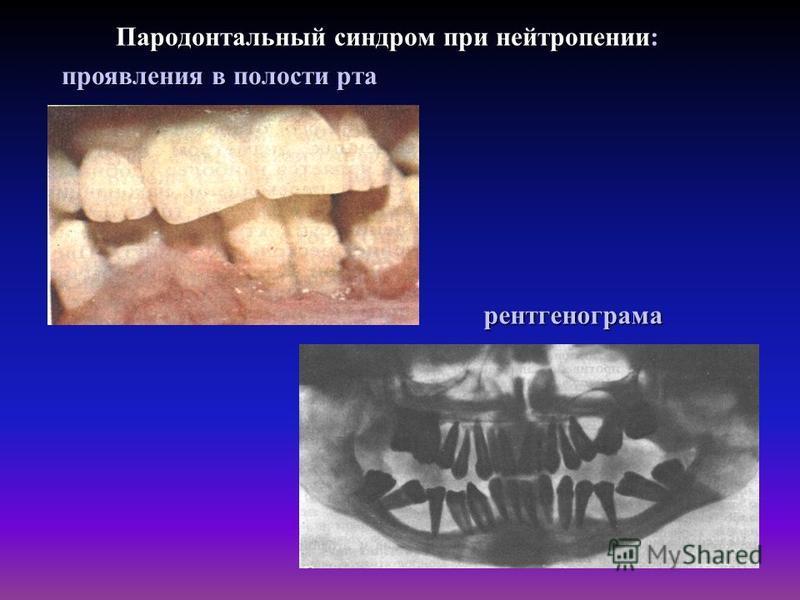 Пародонтальный синдром при нейтропении: рентгенограмма проявления в полости рта