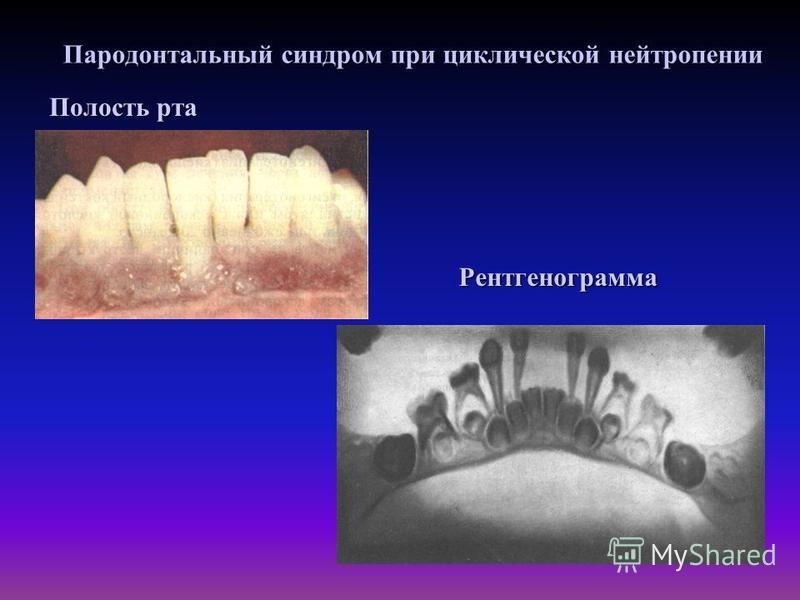 Пародонтальный синдром при циклической нейтропении Полость рта Рентгенограмма