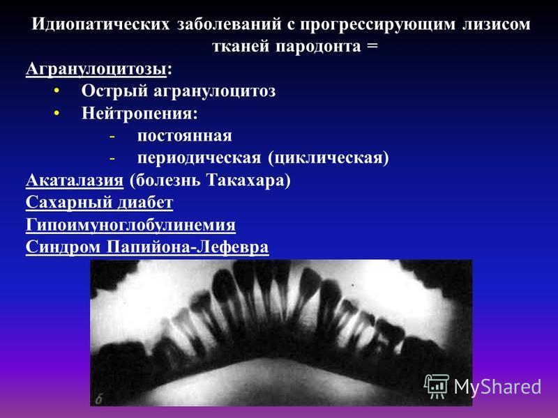 Идиопатических заболеваний с прогрессирующим лизисом тканей пародонта = Агранулоцитозы: Острый агранулоцитоз Нейтропения: -постоянная -периодическая (циклическая) Акаталазия (болезнь Такахара) Сахарный диабет Гипоимуноглобулинемия Синдром Папийона-Ле