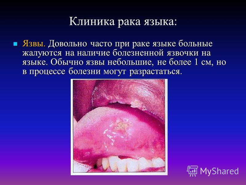 Клиника рака языка: Язвы. Довольно часто при раке языке больные жалуются на наличие болезненной язвочки на языке. Обычно язвы небольшие, не более 1 см, но в процессе болезни могут разрастаться. Язвы. Довольно часто при раке языке больные жалуются на