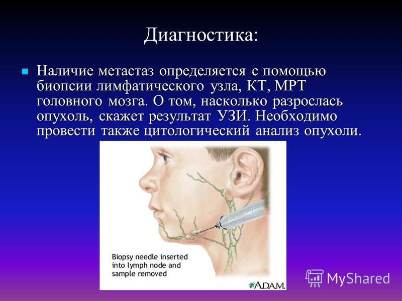 Диагностика: Наличие метастаз определяется с помощью биопсии лимфатического узла, КТ, МРТ головного мозга. О том, насколько разрослась опухоль, скажет результат УЗИ. Необходимо провести также цитологический анализ опухоли. Наличие метастаз определяет