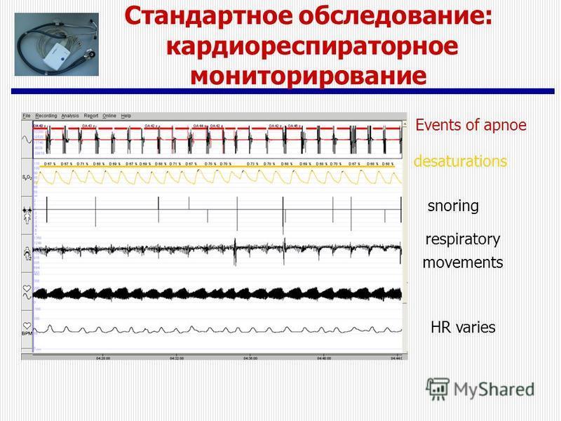 Events of apnoe desaturations snoring respiratory movements HR varies Стандартное обследование: кардио-респираторная мониторирование