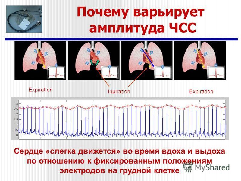 Почему варьирует амплитуда ЧСС Expiration InpirationExpiration Сердце «слегка движется» во время вдоха и выдоха по отношению к фиксированным положениям электродов на грудной клетке