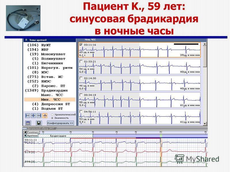 Пациент K., 59 лет: синусовая брадикардия в ночные часы