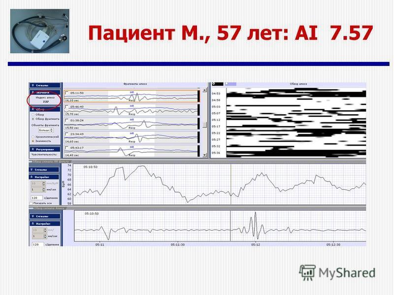 Пациент M., 57 лет: AI 7.57