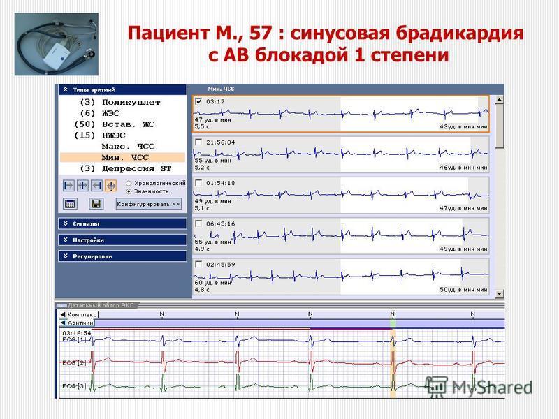 Пациент M., 57 : синусовая брадикардия с АВ блокадой 1 степени