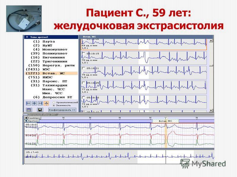 Пациент С., 59 лет: желудочковая экстрасистолия