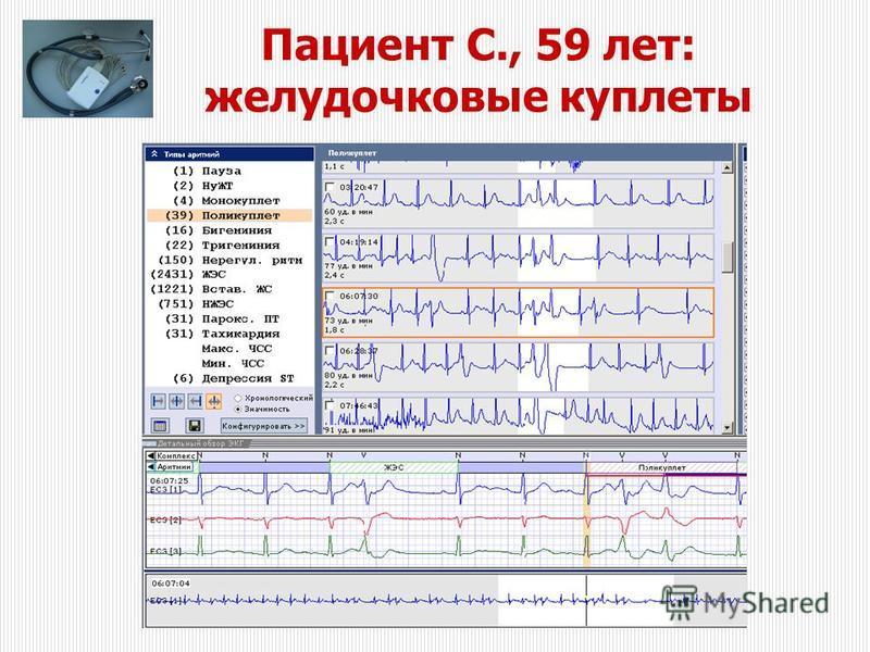 Пациент С., 59 лет: желудочковые куплеты