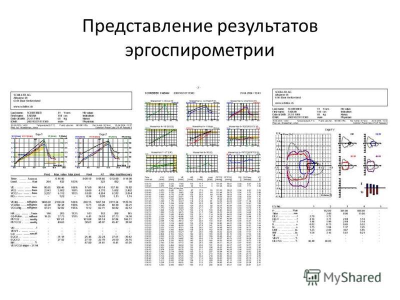 Представление результатов эргоспирометрии