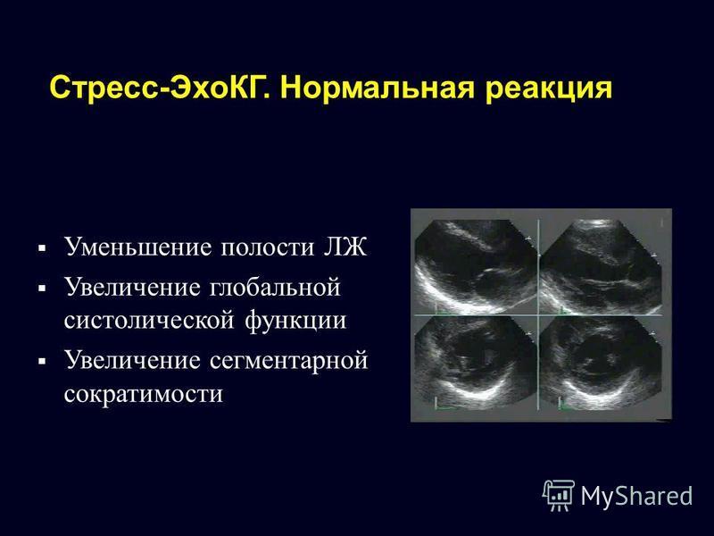 Стресс-ЭхоКГ. Нормальная реакция Уменьшение полости ЛЖ Увеличение глобальной систолической функции Увеличение сегментарной сократимости