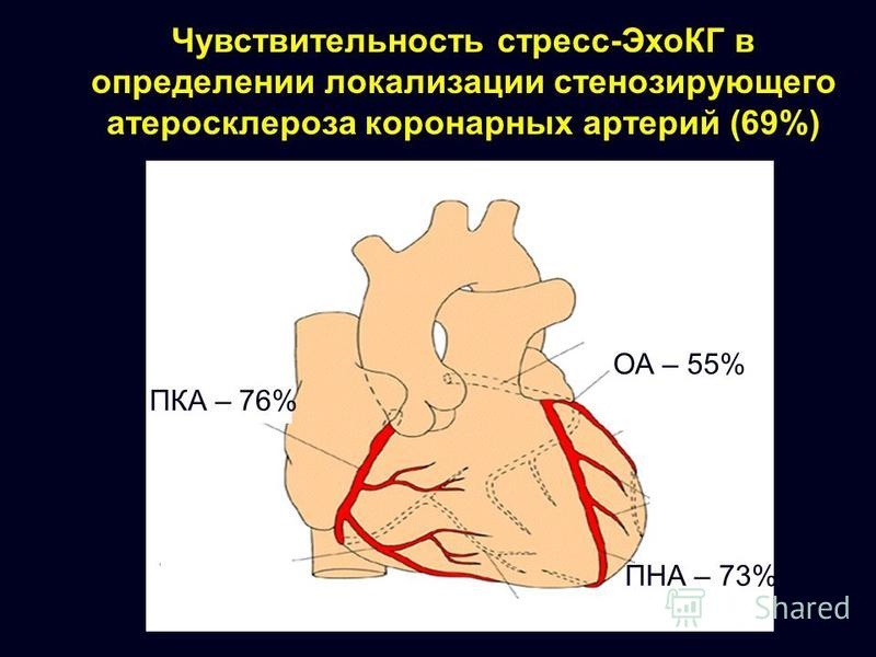 Чувствительность стресс-ЭхоКГ в определении локализации стенозирующего атеросклероза коронарных артерий (69%) ПКА – 76% ОА – 55% ПНА – 73%
