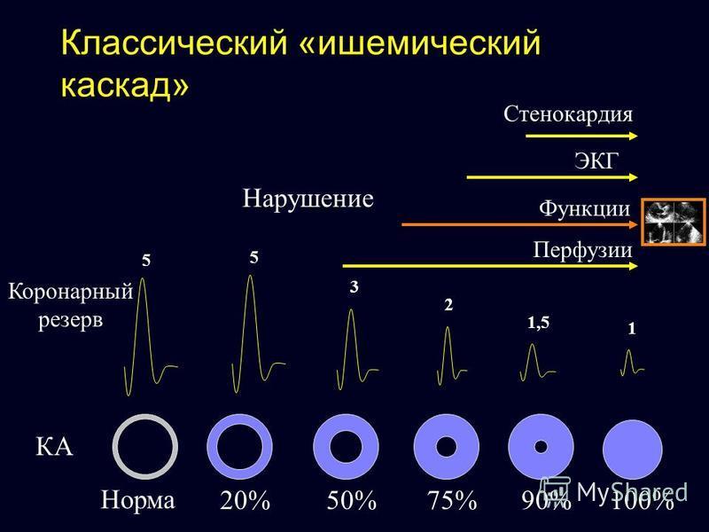 Классический «ишемический каскад» 5 5 Норма 20%50%75%90%100% 3 2 1,5 1 Перфузии Функции ЭКГ Стенокардия Нарушение КА Коронарный резерв