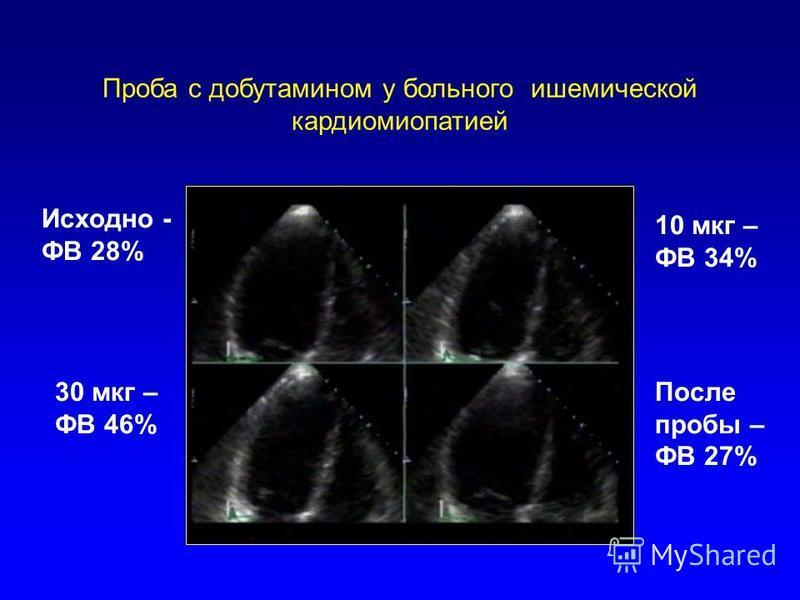 Проба с добутамином у больного ишемической кардиомиопатией Исходно - ФВ 28% 10 мкг – ФВ 34% 30 мкг – ФВ 46% После пробы – ФВ 27%