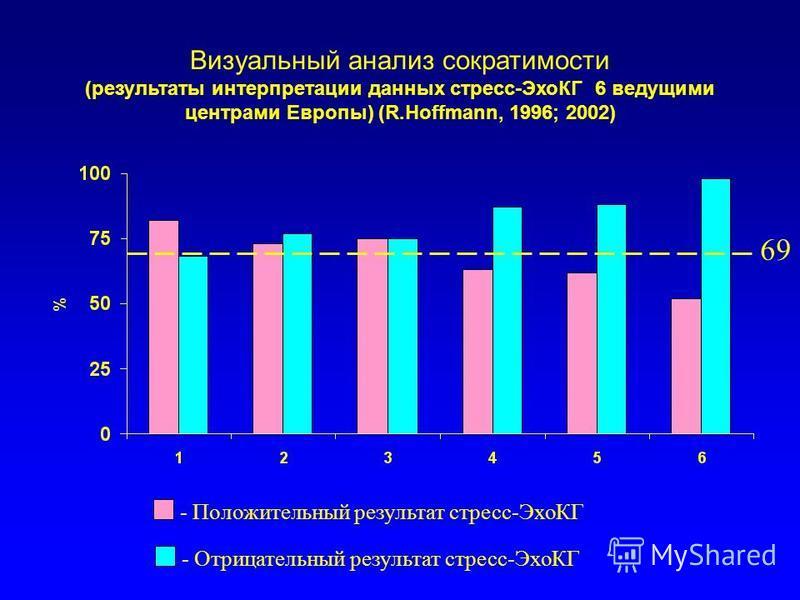 Визуальный анализ сократимости (результаты интерпретации данных стресс-ЭхоКГ 6 ведущими центрами Европы) (R.Hoffmann, 1996; 2002) - Положительный результат стресс-ЭхоКГ - Отрицательный результат стресс-ЭхоКГ 69