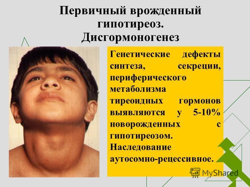 Первичный врожденный гипотиреоз. Дисгормоногенез Генетические дефекты синтеза, секреции, периферического метаболизма тиреоидных гормонов выявляются у 5-10% новорожденных с гипотиреозом. Наследование аутосомно-рецессивное.