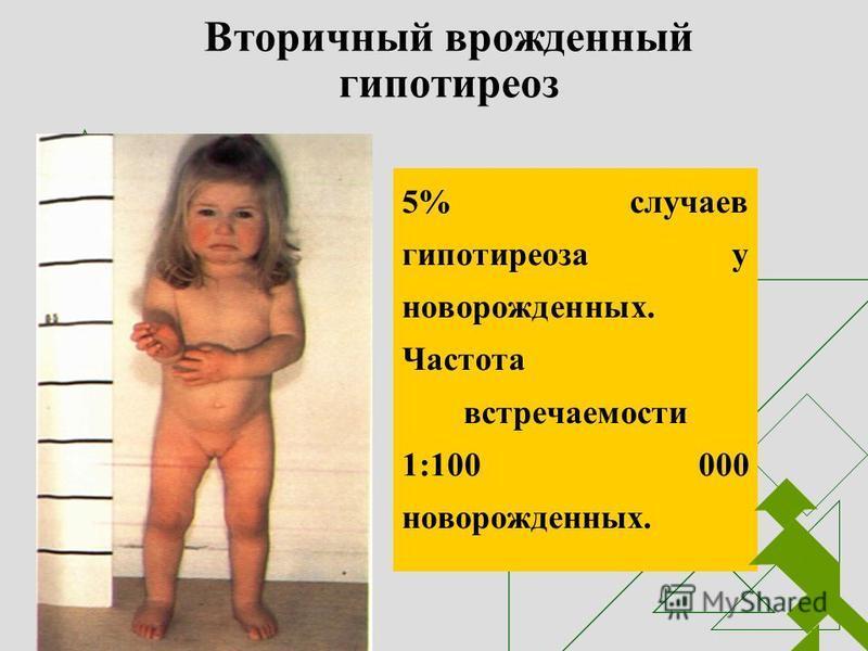 Вторичный врожденный гипотиреоз 5% случаев гипотиреоза у новорожденных. Частота встречаемости 1:100 000 новорожденных.