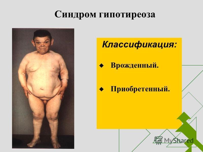 Синдром гипотиреоза Классификация: Врожденный. Приобретенный.