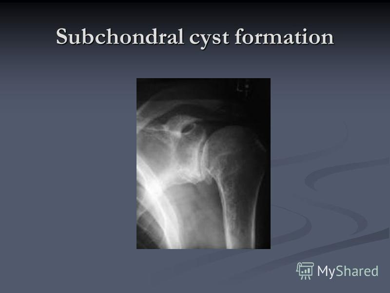 Subchondral cyst formation