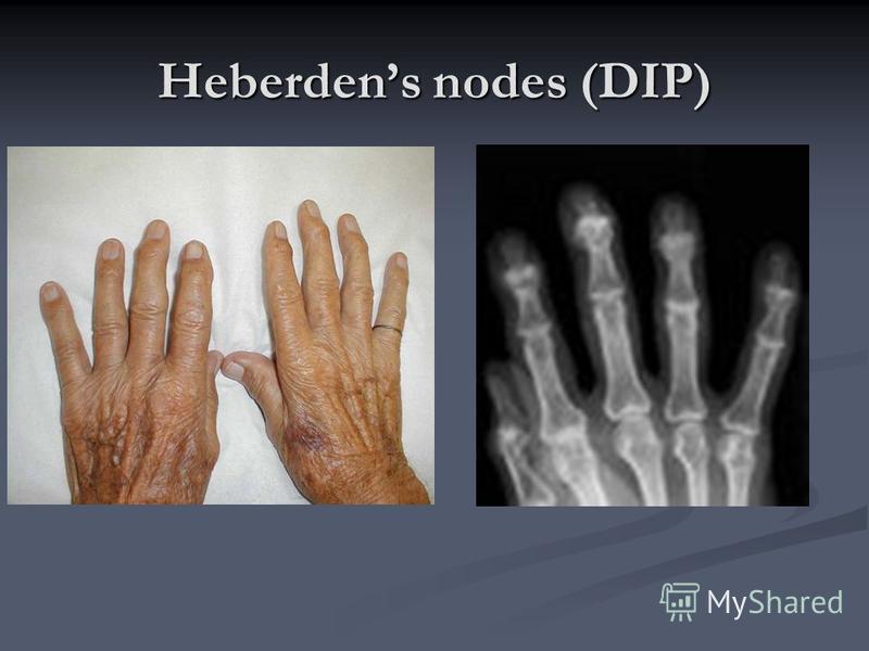 Heberdens nodes (DIP)