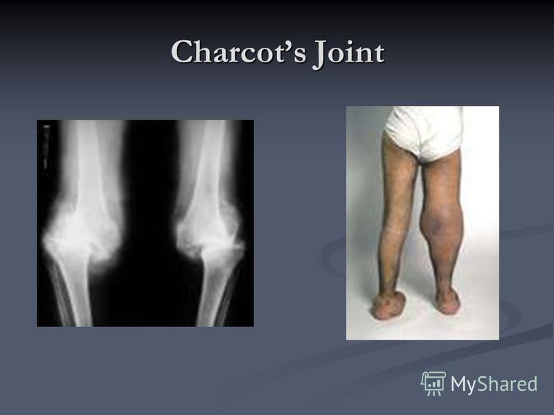 Charcots Joint