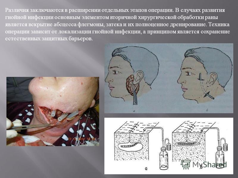 Различия заключаются в расширении отдельных этапов операции. В случаях развития гнойной инфекции основным элементом вторичной хирургической обработки раны является вскрытие абсцесса флегмоны, затека и их полноценное дренирование. Техника операции зав