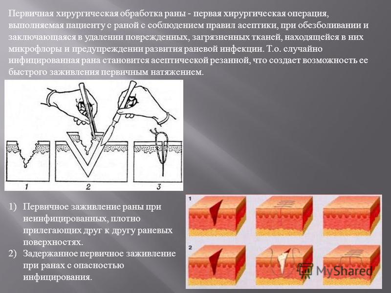 Первичная хирургическая обработка раны - первая хирургическая операция, выполняемая пациенту с раной с соблюдением правил асептики, при обезболивании и заключающаяся в удалении поврежденных, загрязненных тканей, находящейся в них микрофлоры и предупр