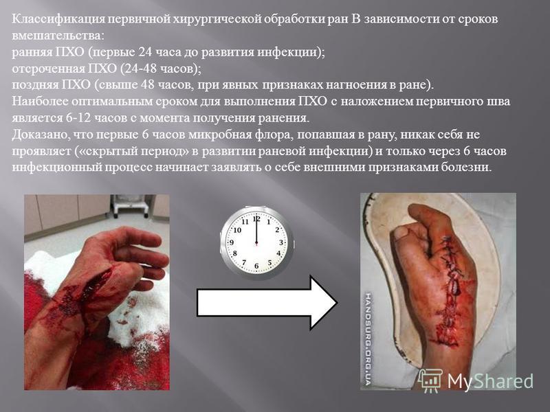 Классификация первичной хирургической обработки ран В зависимости от сроков вмешательства : ранняя ПХО ( первые 24 часа до развития инфекции ); отсроченная ПХО (24-48 часов ); поздняя ПХО ( свыше 48 часов, при явных признаках нагноения в ране ). Наиб